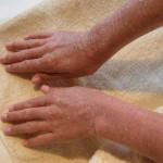 肌乾燥対策