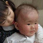 赤ちゃんのアトピー改善。本来のツルピカお肌に戻るためのポイント9つ