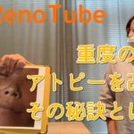 【RenoTube】重度のアトピーはこうして改善しました!一気に改善に向かった秘訣とは!